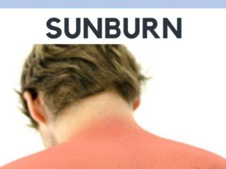 cooling the summer heat when youve got a sunburn