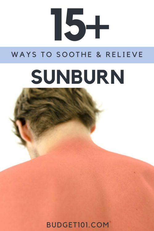 cooling-the-summer-heat-when-youve-got-a-sunburn
