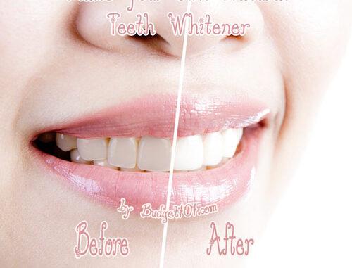 MYO Natural Teeth Whitener | Homemade