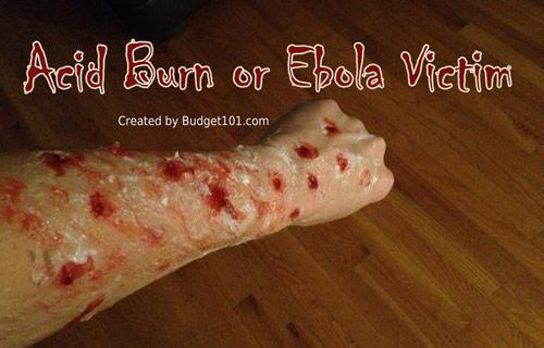 acid-burn-victim