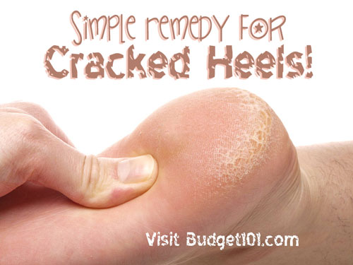 cracked-heels-remedy