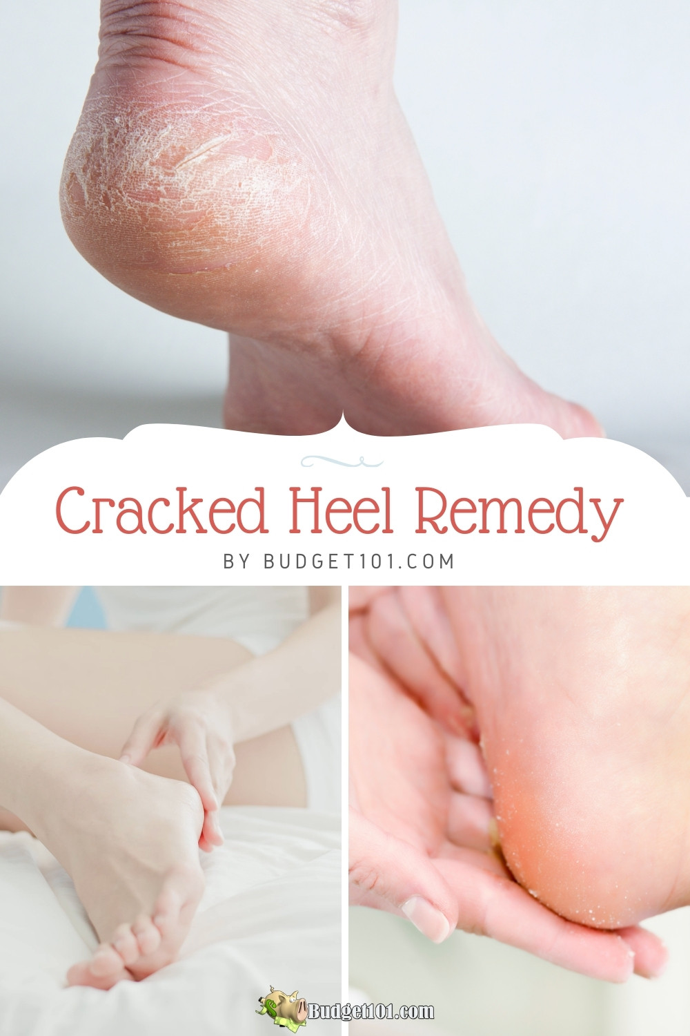 how to fix cracked heels at home, easy remedy for fast relief #crackedheels #pedicure #footcare #DIY #Budget101 #homeremedies