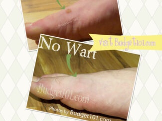 how to cure warts