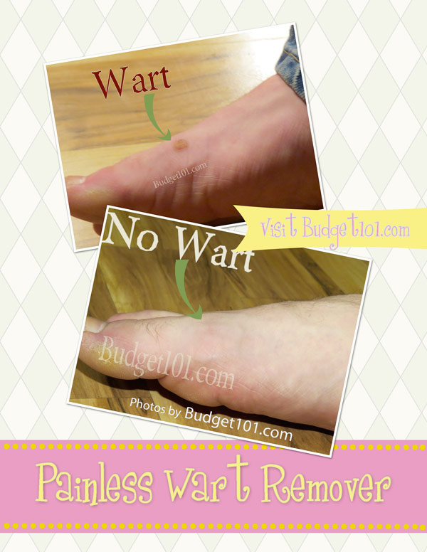 how-to-cure-warts