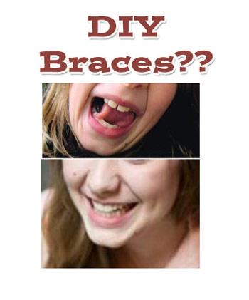 diy-braces