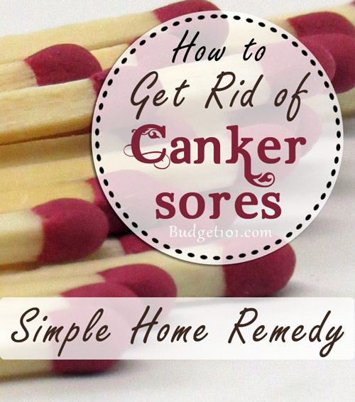 canker-sore-remedy