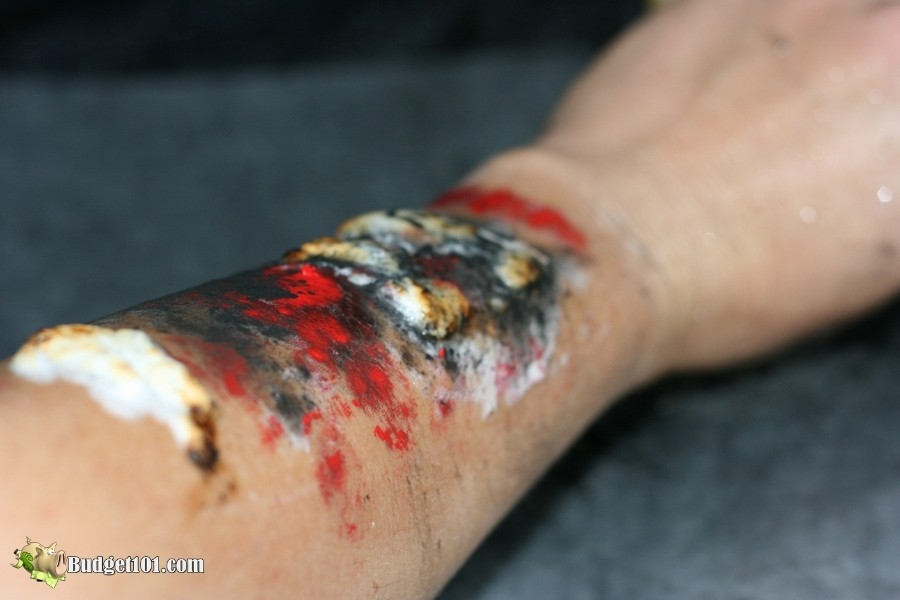 b101 burn wound fx step 5