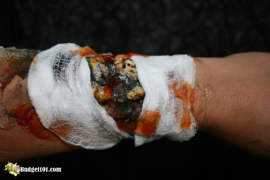 b101 infected burn wound special fx