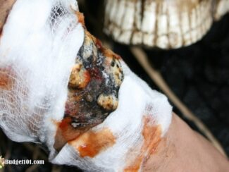 b101 pus filled burn wound halloween effect