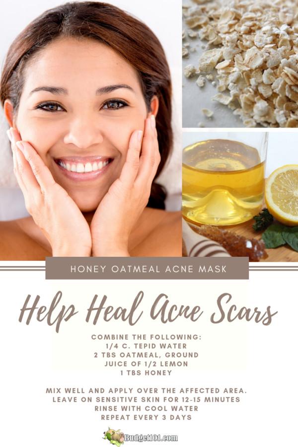 burn-or-acne-scar-reduction
