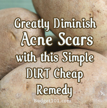 burn or acne scar reduction
